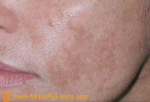 brune flekker på huden